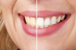 albire-dentara