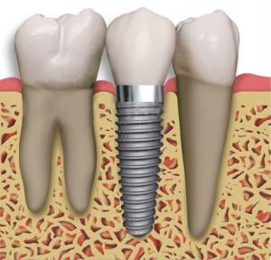 Exemplu de implant